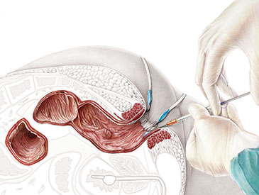 ileo neo rectal anastomosis